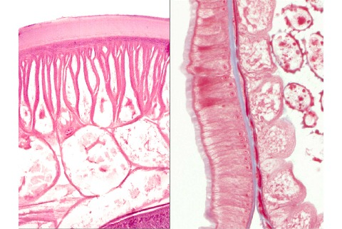 Histological Cross Sections Of Ascaris Body Wall Left He And Gut